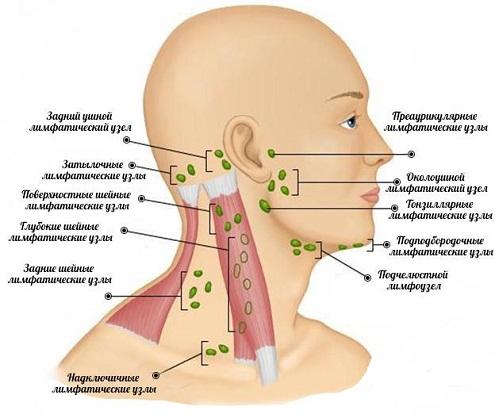 Причина воспаления лимфоузлов