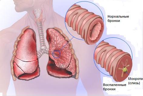 Бронхит и другие заболевания