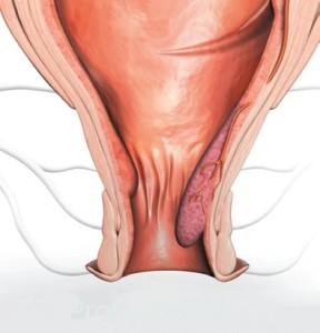 Процедуры лечения геморроя